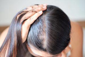 HairActiv γνωμοδοτήσεις, δικαστήριο, σχόλια